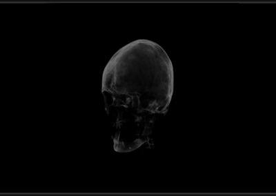 Image of volumetric head example for WPF and WinForms.